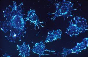 Rak jajnika, czy wiesz jaki jest podstępny?