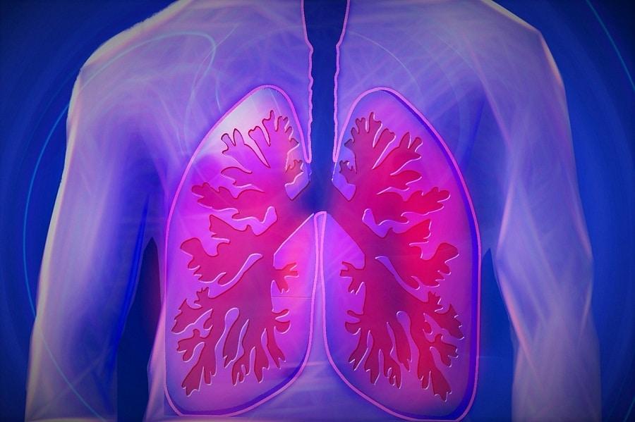 Niszczy płuca i zabija. POChP zajmuje 4. miejsce wśród przyczyn zgonów