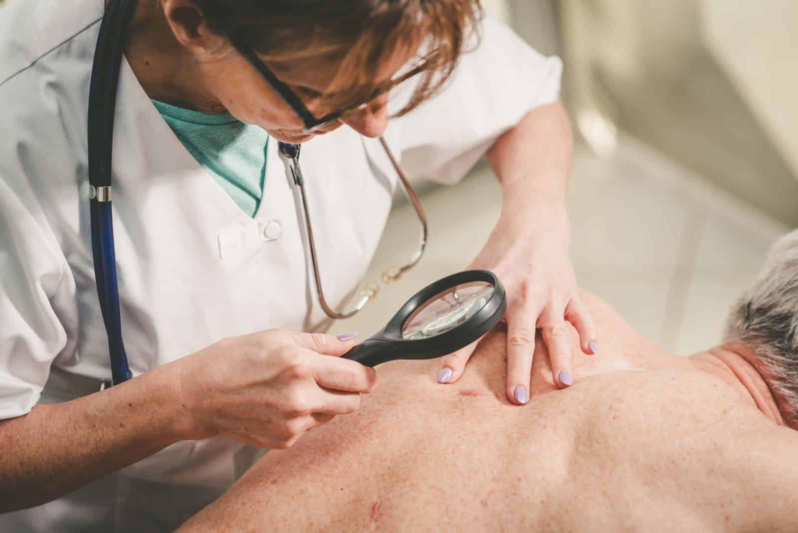 Wczesne wykrywanie raka skóry
