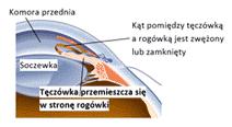 Jaskra mechanizm powstawania_PTO 2