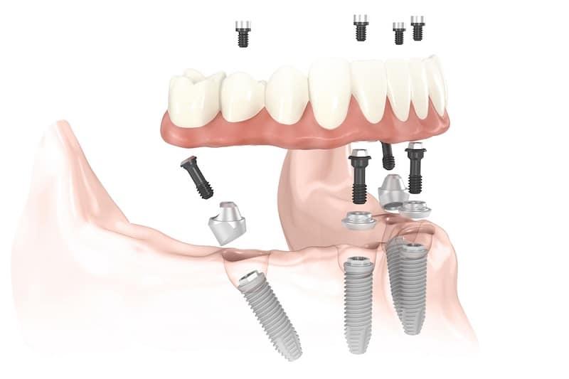 Dental med Implanty all on 4