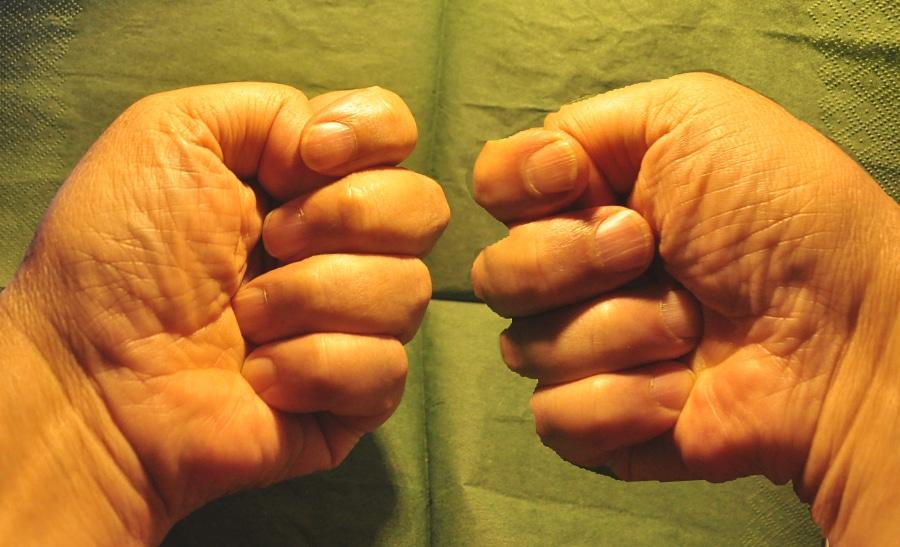 Trzymajcie kciuki za zabobony